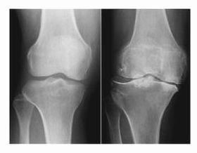 正常な膝関節(左)と、軟骨がすり減って骨がこすれ合っている膝