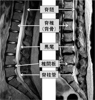 脊柱管狭窄症患者(右)の背骨のMRI画像。正常な背骨(左)に比べて脊柱管が細くなっている