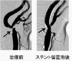 カテーテルを通して狭まった血管を広げる頸動脈ステント留置術(新野部長提供)