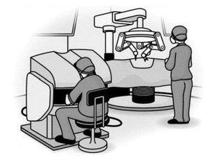 【がん何でもQ&A】ロボット手術 精度向上しより安全に