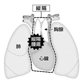 【連載がん何でもQ&A】縦隔腫瘍 両肺の間にできる腫瘤