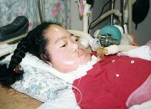 1998年、難病を抱え人工呼吸器を付けて中学に進学した平本歩さん=兵庫県尼崎市