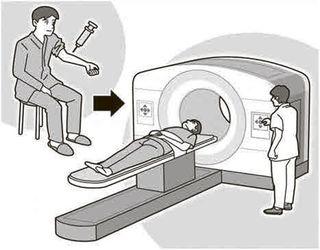 【がん何でもQ&A】PET—CT検査とは 薬剤注射 病巣を画像化