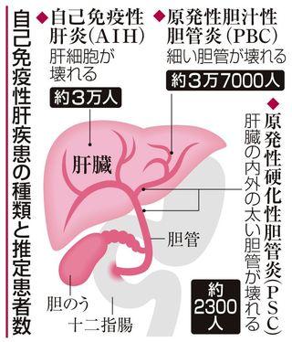 【肝臓の難病、患者増加】放置すれば肝硬変 正しい理解へ、受診を